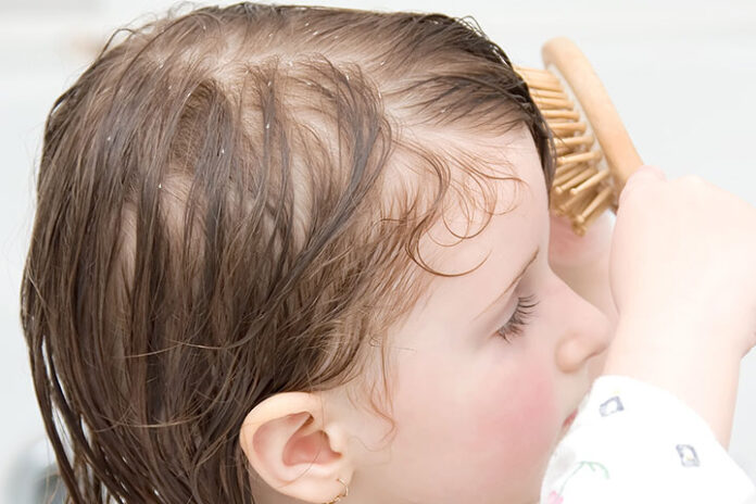 How to treat dandruff for children