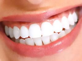 Things to know about dental veneers